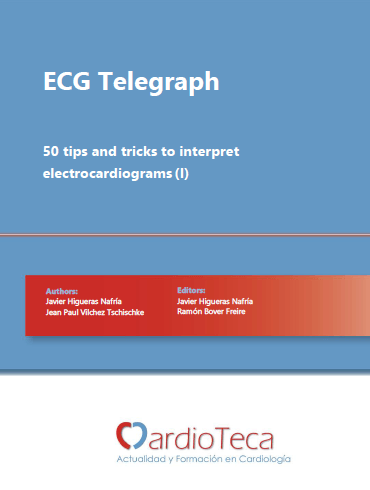 ECG Telegraph - 50 tips and tricks to interpret electrocardiograms (I)